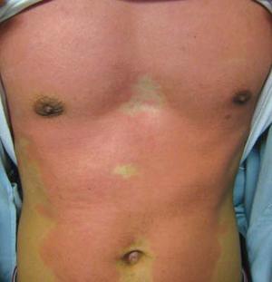 Hong kong journal of dermatology venereology for Fish allergy rash pictures